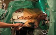 operski pevac operacija mozga peva