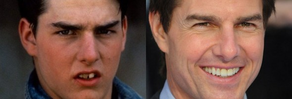 vestacki-zubi-tom-cruise